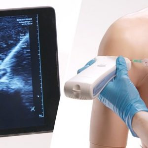 2. Ultrasound-Guided Injections_2